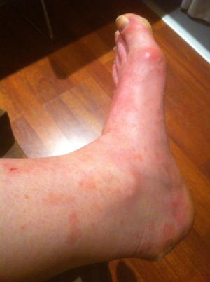 blotchy foot low-res 381