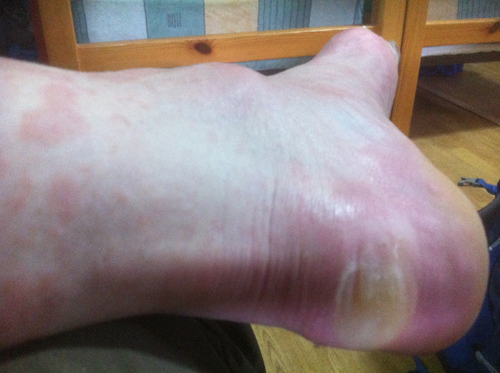 heel blister low-res 402
